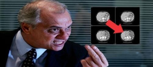 Marcelo Rezende volta a consumir carboidratos