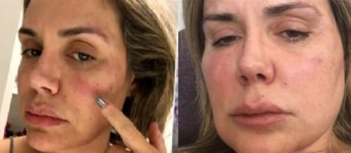 Renata Banhara diz que pensou em suicídio ao ver rosto deformado após infecção