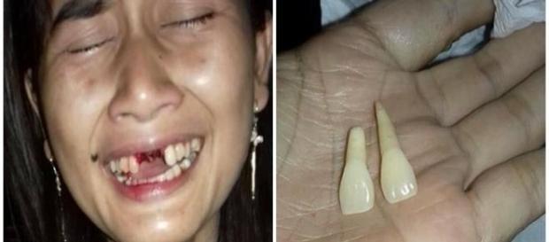Mulher é agredida pelo próprio marido e perde dois dentes.