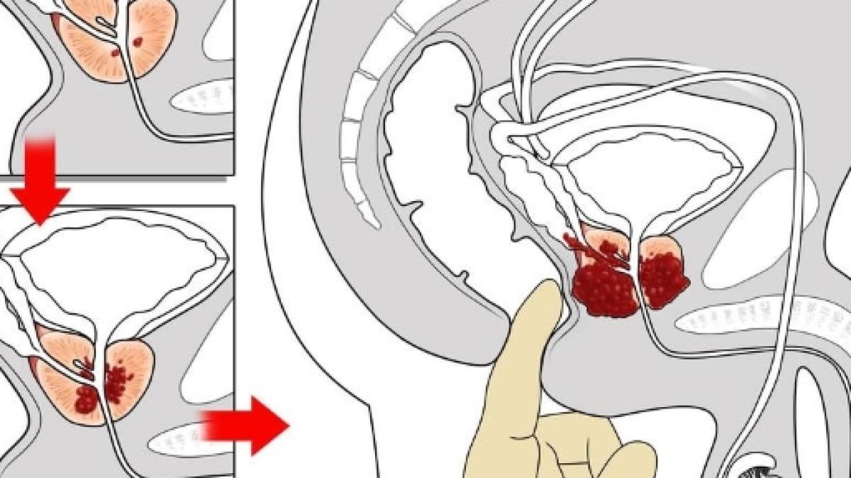 Andrey Malakhov su prostata - Metodi hardware di trattamento della prostatite