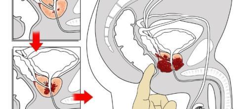 Sorveglianza attiva del cancro alla prostata: quali sono gli esami ... - my-personaltrainer.it