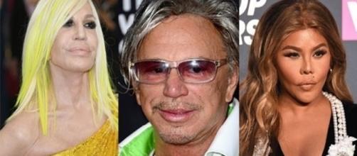 Cirurgias em busca da perfeição que infelizmente resultaram em algo negativo para esses famosos