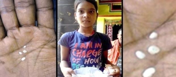 Familiares e vizinhos estão com medo da garota. Eles acreditam que ela está possuída por espírito (NDTV)