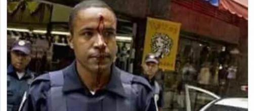 Notícia fake sobre GCM atingido na testa (Foto: Henrique Manreza)