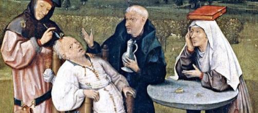 Desmitificando la trepanación en la Era Clásica y la Edad Media - anfrix.com
