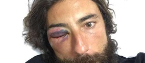 Vittorio Brumotti aggredito a Napoli, picchiato l'inviato di ... - lacittadisalerno.it