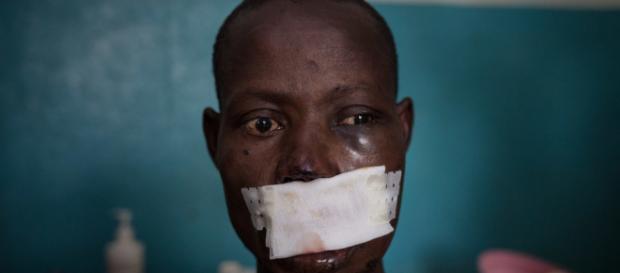 Léonard Gangbe, 33 anni, agricoltore, uomini armati gli hanno sparato alla testa. - Foto da Msf