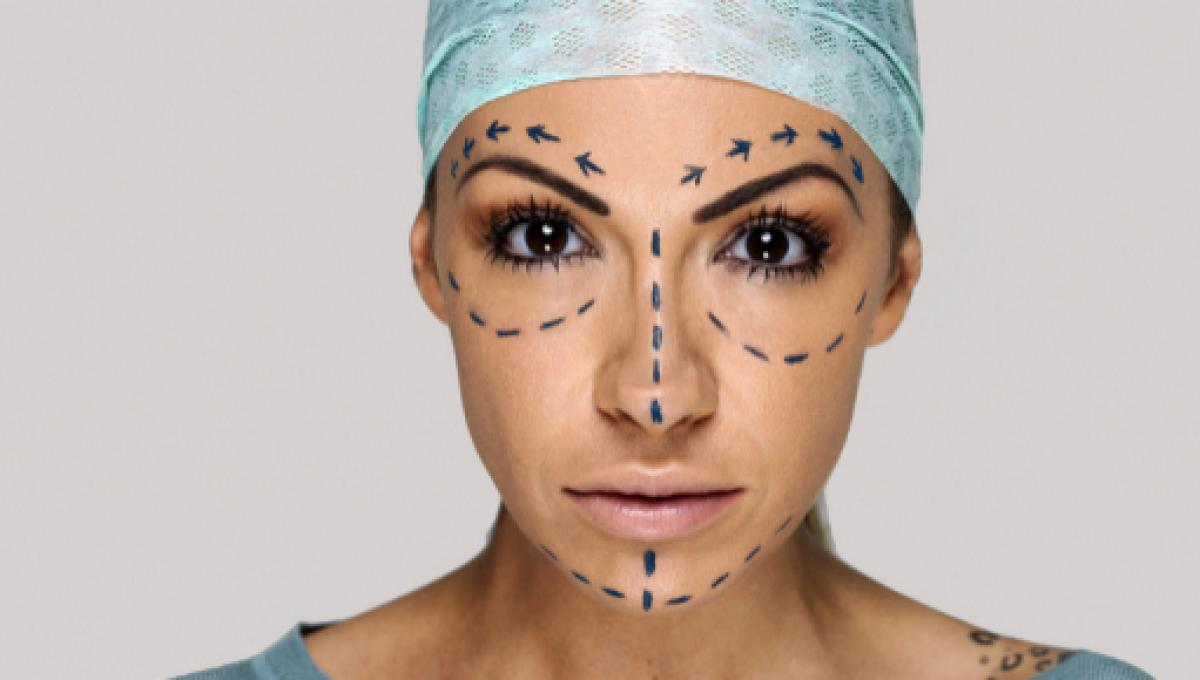 Top plastic surgery trends of 2017