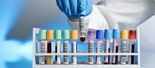 Diagnosi precoce per l'individuazione di 8 tumori: ecco di cosa si tratta