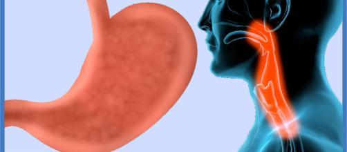 La esofagitis eosinofílica (EE) es una conocida afección crónica alérgica del sistema