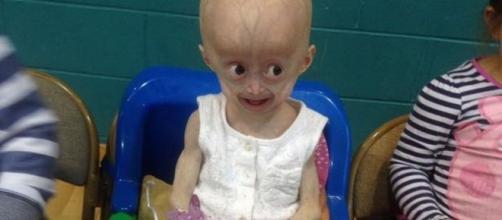 Lucy Parke è morta: malata di Progeria
