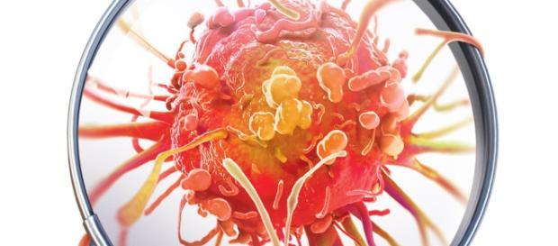 Teste ajuda a identificar até tipos de câncer