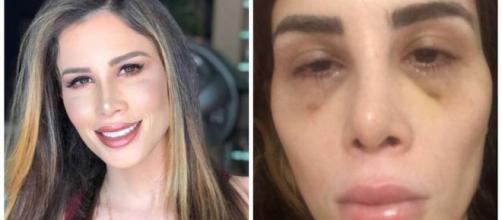 A youtuber Camilla Uckers, antes e após os procedimentos cirúrgicos