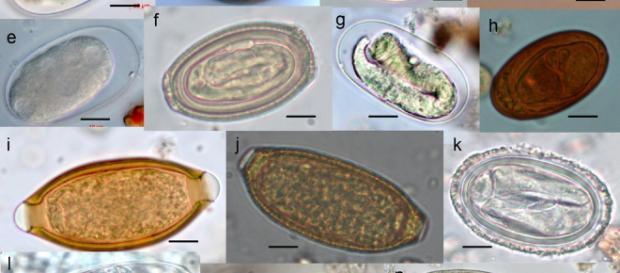 How to kill parasites naturally. [Image via By Roland Yao Wa Kouassi, Scott William McGraw/Wikiemedia]