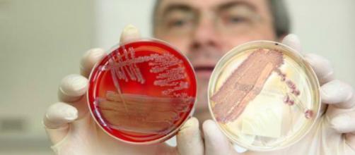 Trapianto di feci per curare pazienti immunodepressi