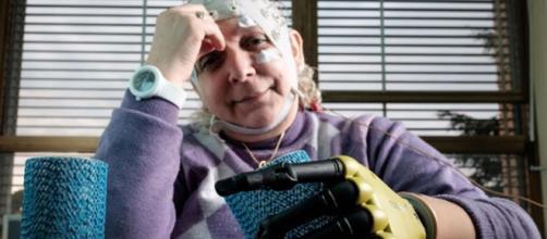 Impiantata mano bionica in una donna veneta - avvenire.it