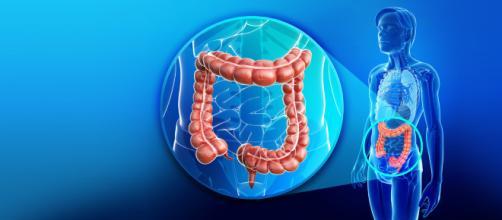 intestino infiammato. come riconoscere le cause