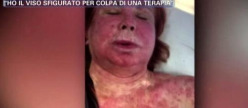 Marina Ripa di Meana video shock malattia