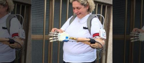 Prima mano bionica installata ad una donna veneta - foxnews.com