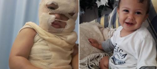 Bebê tem rosto desfigurado por água fervendo e pais fazem apelo. (Foto Reprodução).