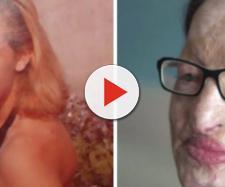 Filomena, sfigurata con l'acido: 'Lui è libero, a me l'INPS ha sospeso la pensione'