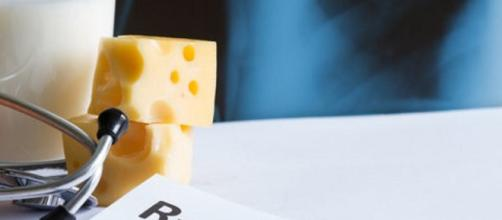 La dieta povera di calcio e la carenza di vitamina D possono causare fratture alle ossa. (Canva)