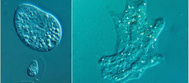Ameba rara que ataca o cérebro é encontrada em lagoas e piscinas sem tratamento