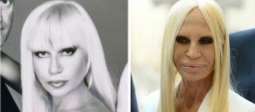 Donatella Versace ficou com traços muito diferentes depois de diversas intervenções plásticas