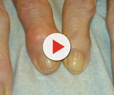 Alcuni rimedi per curare l'artrosi alle mani.