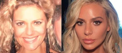 Dorit Kemsley is seen in before and after photos, prompting rumors of plastic surgery. - [doritkemsley / Instagram]