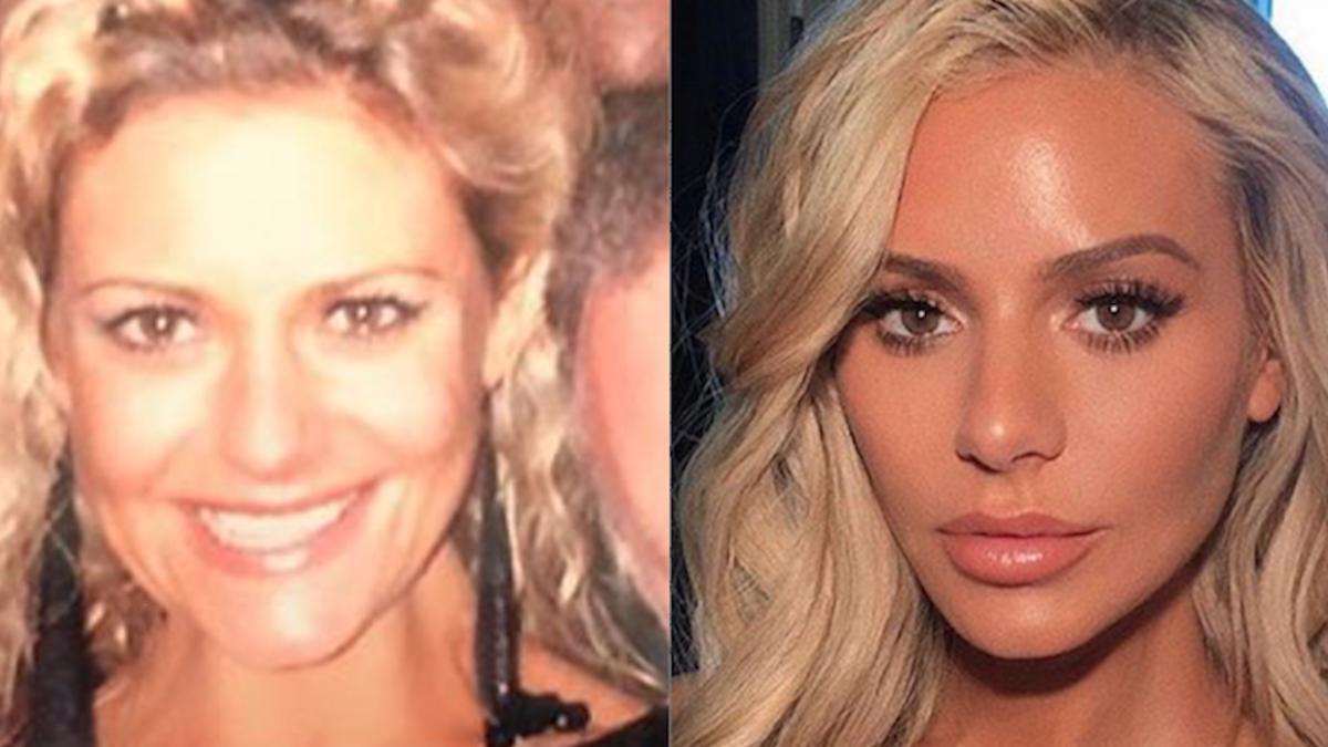 Did 'RHOBH's Dorit Kemsley have plastic surgery? Dr  Jason Emer