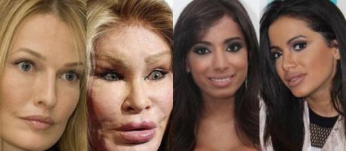 Muitas celebridades se submetem às táticas mais extremas para melhorar a aparência. (foto reprodução)