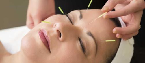 A acupuntura é uma técnica válida e eficaz que se deve complementar a medicina convencional.