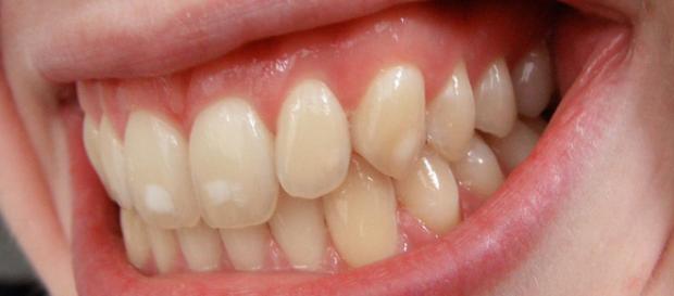 Image of mild dental fluorosis. Image via wikimedia commons. Author: josconklin