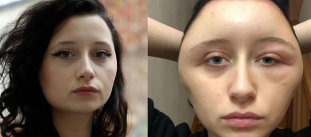 Défigurée après une coloration pour cheveux, Estelle a failli y passer
