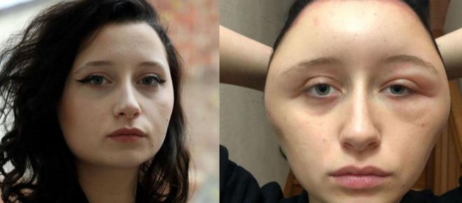 Créteil : Défigurée après une coloration pour cheveux, Estelle a failli perdre la vie