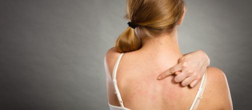 Manipular as espinhas pode agravar a inflamação.