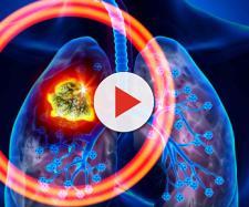 Tumore ai polmoni: alcuni segnali.