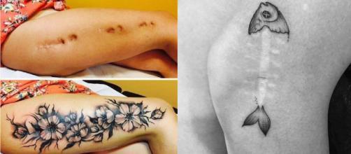 Cicatrizes e manchas retratados em lindas tatuagens. (Foto/Reprodução via Google).