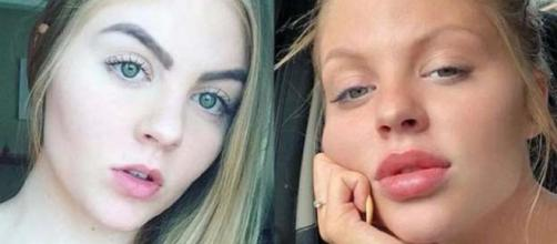 Luiza Sonsa aplicou botox nos lábios. (Reprodução/MSN)
