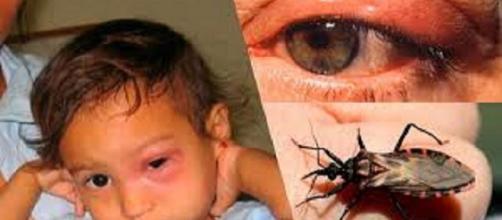 Las zoonosis parasitarias afectan a niños, adultos y ancianos, y muchas veces son subregistradas