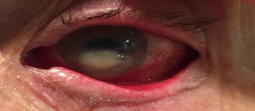 Problemas graves causados pelo uso irregular de lentes de contato. (foto reprodução).