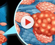 Alcuni sintomi del tumore al seno.