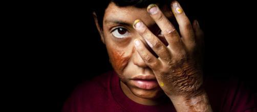 Aplicación con consejos de cómo prevenir las quemaduras en niños.