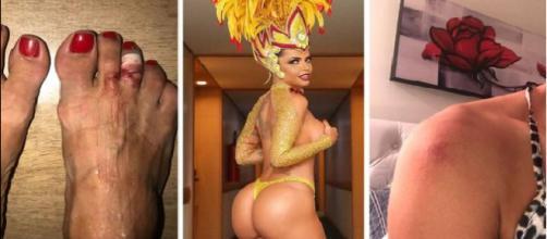 Modelos famosas vítimas da folia de Momo ou Carnaval. (Foto Reprodução).
