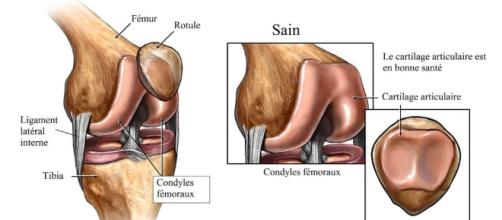 Arthrose du genou, symptômes et traitement naturel - physiotherapiepourtous.com