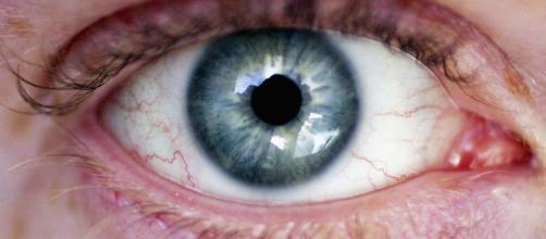 Giovane 27enne aveva 14 vermi in un occhio: ecco cos'è accaduto.