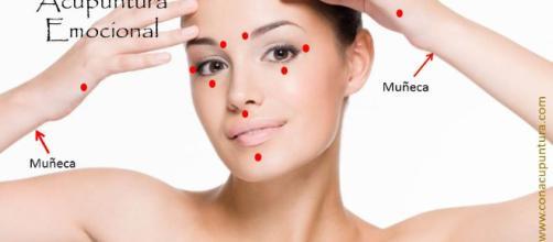 Técnicas de acupuntura sanan enfermedades. - conacupuntura.com