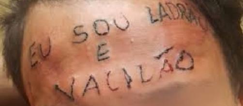 """Rapaz foi tatuado com os dizeres ''eu sou ladrão e vacilão"""""""