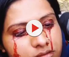 Jovem é abandonada pelo esposo por chorar sangue